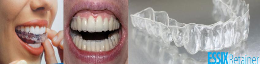 Brickcity DenturePro – Tooth Care